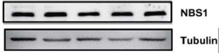 ABclonal:Western blot (WB) review for [KO Validated] NBN Polyclonal Antibody(A0783)