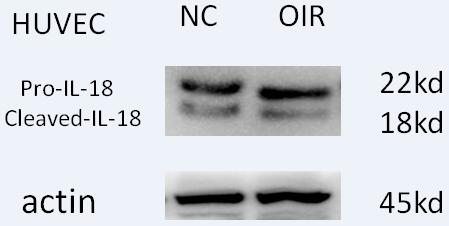ABclonal:Western blot (WB) review for [KO Validated] IL18 Polyclonal Antibody(A1115)