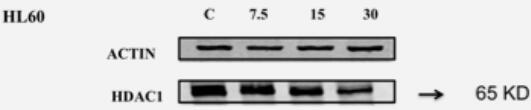 ABclonal: review for [KO Validated] HDAC1 Polyclonal Antibody(A0238)